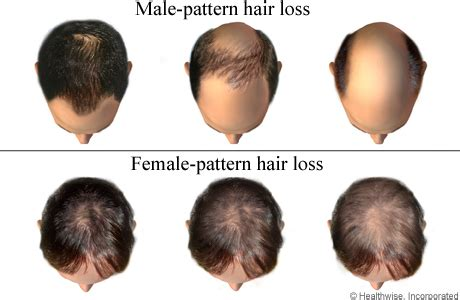 aspagus and hair loss /growth picture 1