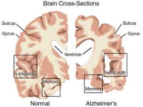 imaging and the aging brain picture 18