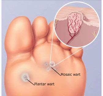 genital wart treatments picture 2