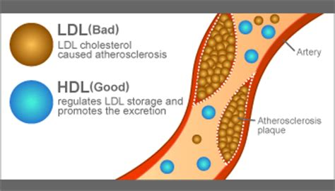 How to raise hdl cholesterol level picture 4
