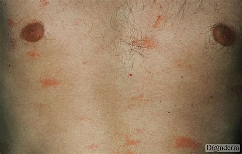 chest waxing acne picture 2