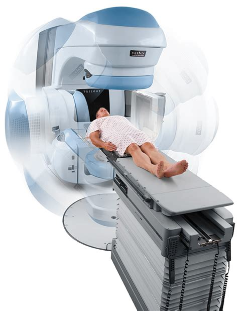 colon cancer radiation treatment picture 1