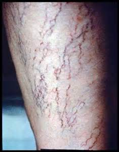 small red spider-like blood vessels on the skin picture 11