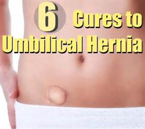 herbs to repair umbilical hernia picture 3