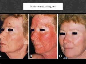 efudex 40 treatment picture 6