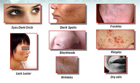 face skin conditions picture 5