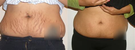 fraxel stretch mark removal photos picture 15