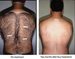 electrolysis hair removal for genitals picture 9