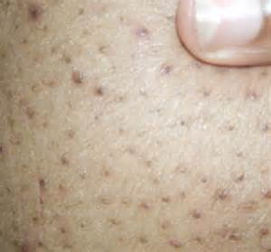 treatment for inner thigh acne picture 10