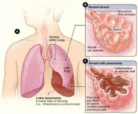 herbal treatment of pleural effusion picture 11