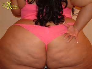 ass cellulite picture 5