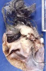 tumor with teeth and hair picture 10