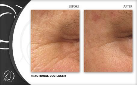 laser treatment fungus toe in florida picture 6
