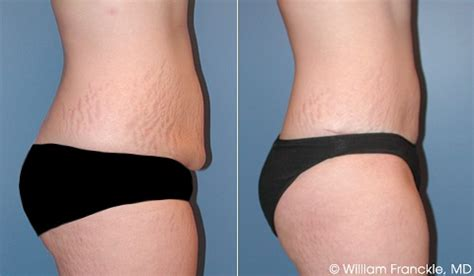 breast enlargement surgeon south jersey picture 2
