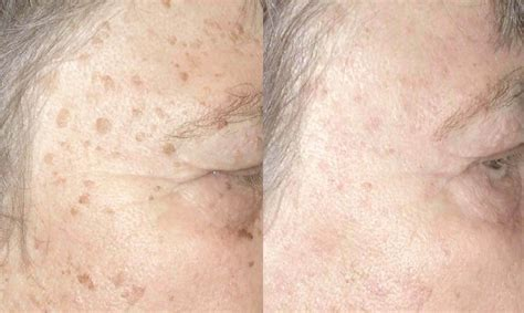 aging spots cure picture 2