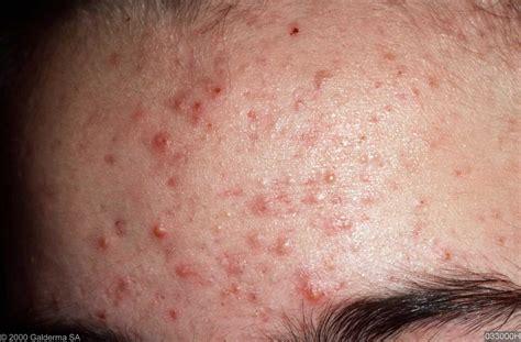 acne vulgaris picture 7