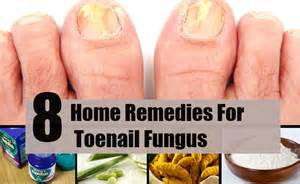 home remedies for nail fungus picture 5