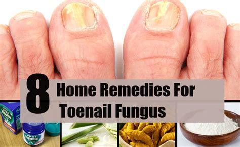 toenail fungus homemade remedy picture 1