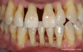 bone loss in teeth picture 9