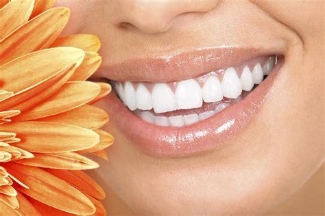oregon teeth whitening picture 1
