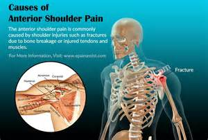 causes of joint and muscle pain picture 5