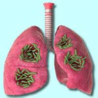 bacterial infection in lungs picture 2