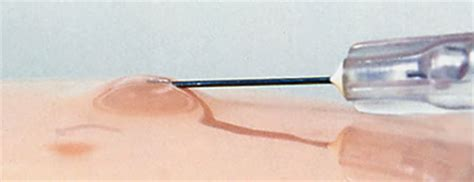 prostate angle pages restraint needle bladder insertion picture 4