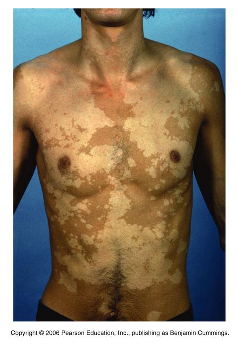 can blood penetrate intact skin picture 15