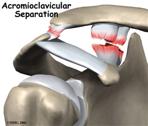 acromio-clavicular joint picture 19
