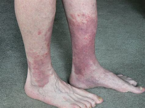 Blood circulation legs picture 1