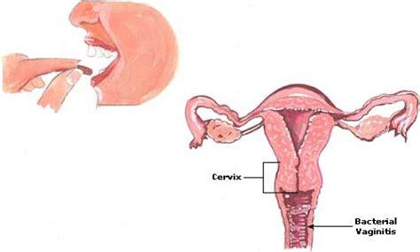 vaginal bacterial vaginitis picture 2