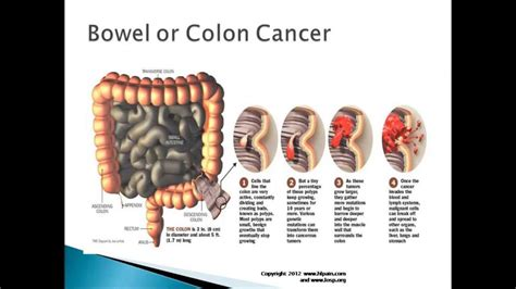 back pain caused by colon tumor picture 6
