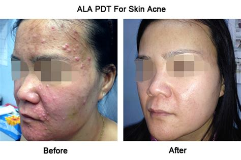 ala for acne picture 5