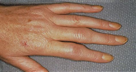herbal gout releif picture 3