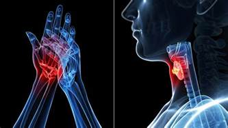 arthritis and thyroid disease picture 2