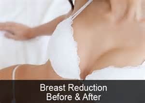 reduce breast size by dr bilquees picture 13