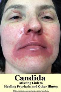 yeast on face picture 7
