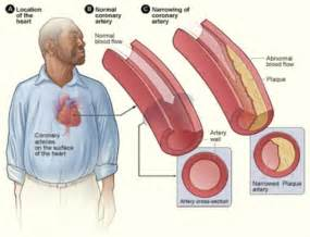 What affects cholesterol picture 14