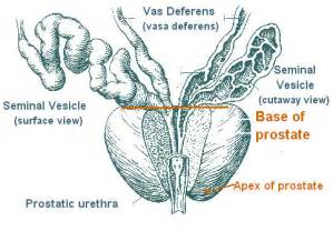 Prostate cancer of the apex picture 1
