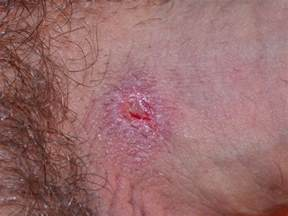 sores on penis after picture 1