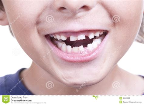 dreams and loosing teeth picture 6