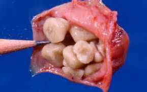 canine bladder tumor picture 6