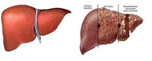human liver diagram picture 10