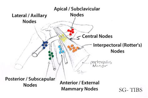 calcium in axillary lymph node and autoimmune disease picture 11