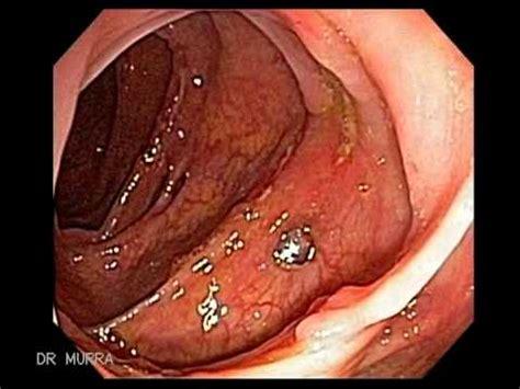 colon osicapy picture 13