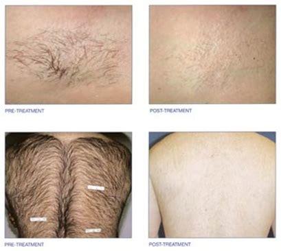 hair removal effect on sex picture 13
