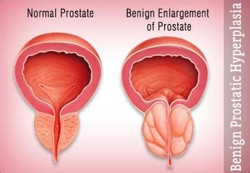 Herpes and prostate problems picture 7