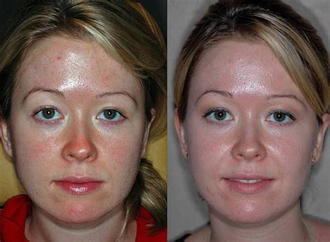 does ytacan plus lightens 's skin picture 11