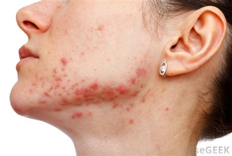 acne facial picture 6