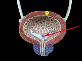 study of the female bladder picture 5
